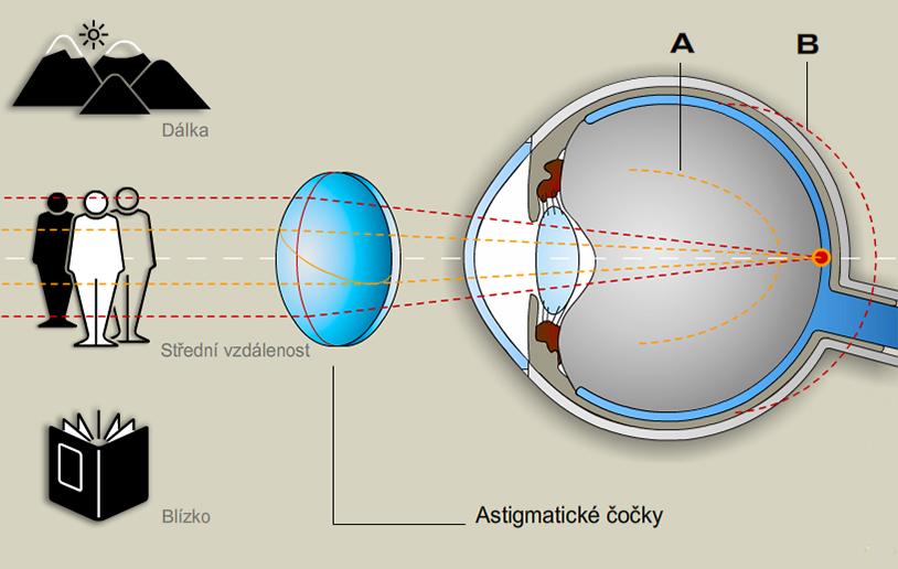 astigmatismus_s